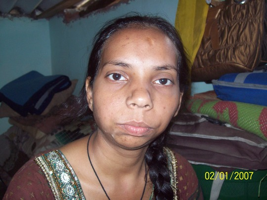 Rehana - before surgery