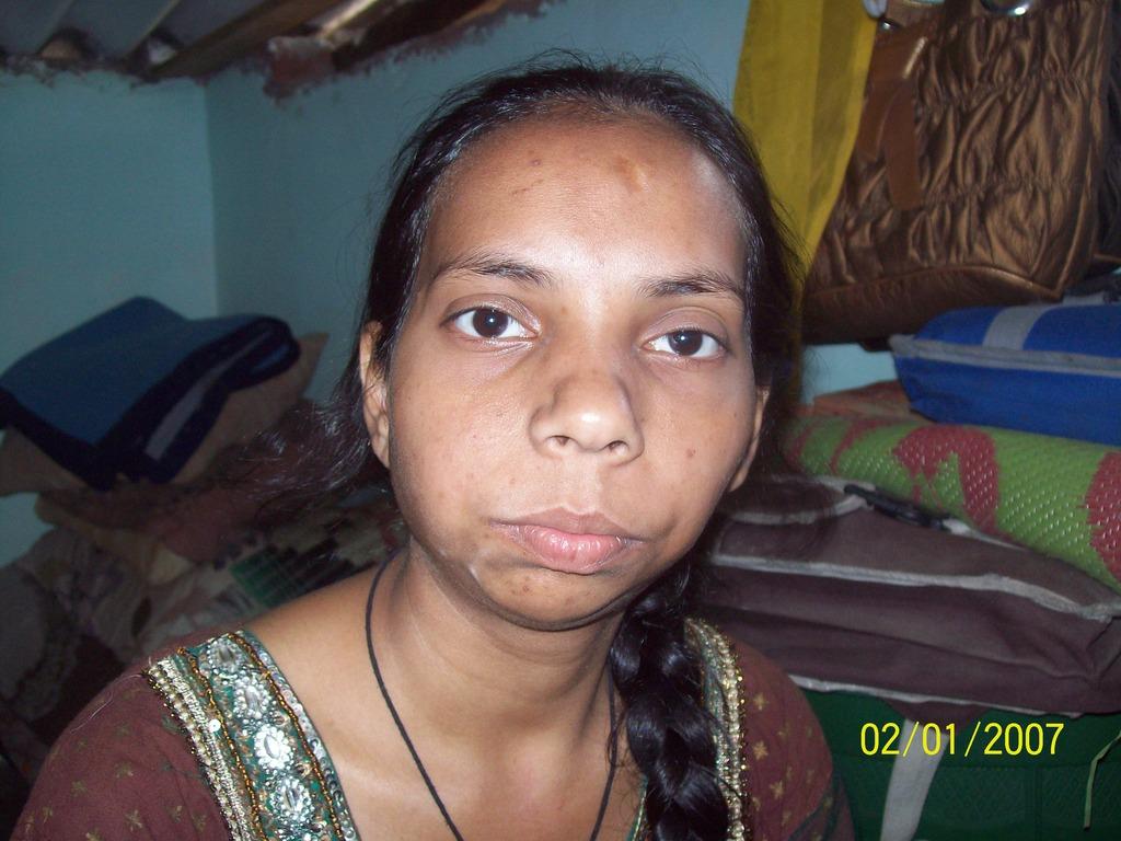 Rehana - before surgery