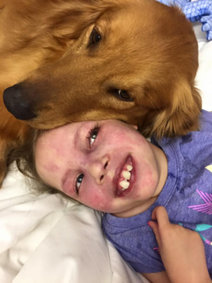Seizure-Response Dogs for those with Epilepsy