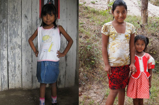 Fatima before treatment (left) & now with sister