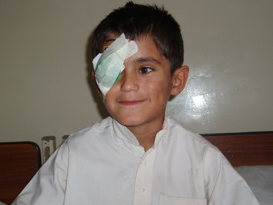 Osama after his successful surgery