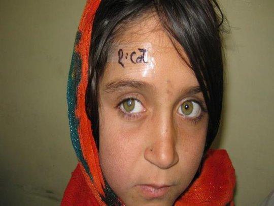Help the poor blind children in Pakistan See!