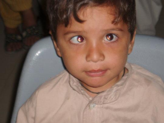A squint patient