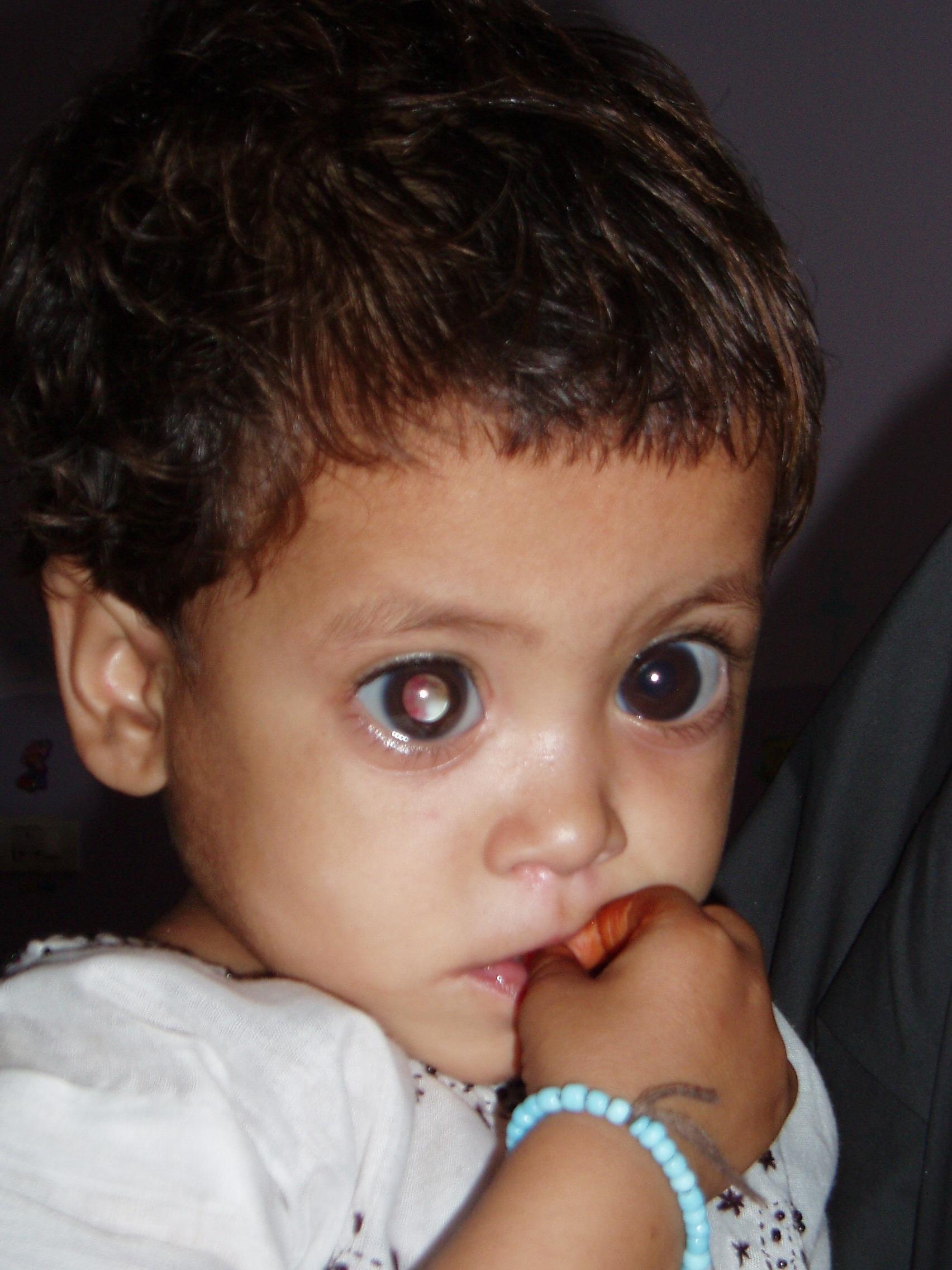 Help the poor blind children in Pakistan See! - GlobalGiving