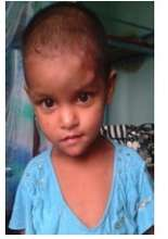 Two-year old Sarawasti; New kid at the Orphanage