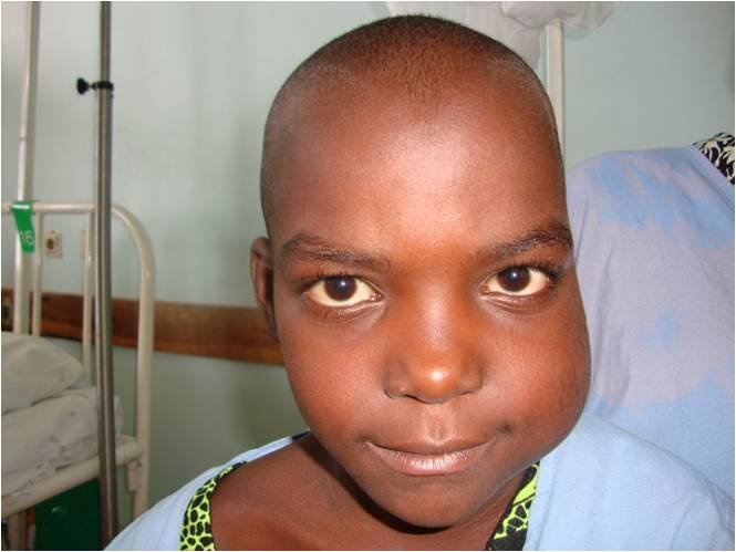 Child with BL before treatment