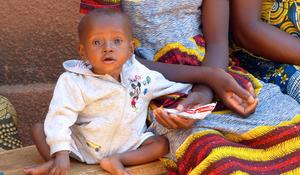A little boy in Burkina Faso receives Plumpy'Nut