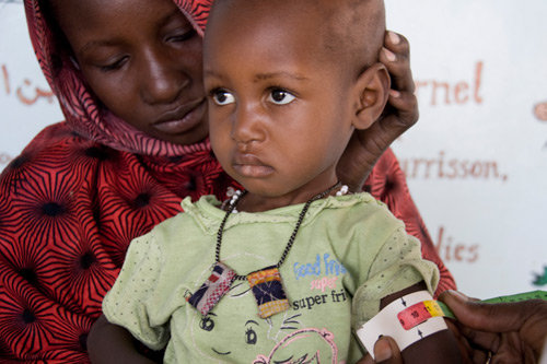 A child in the Sahel w/ Severe Acute Malnutrition
