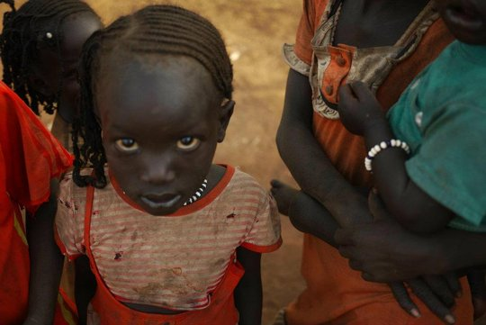 Diesel, a Sudanese refugee, now lives in Maban