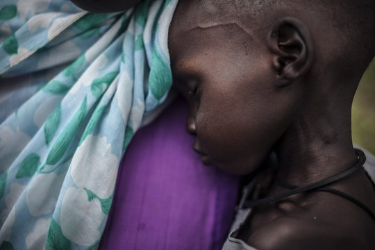 Two year-old Hassan suffers from malnutrition.